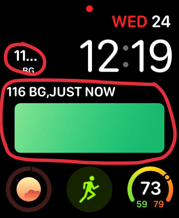 apple watch face with blood glucose complications